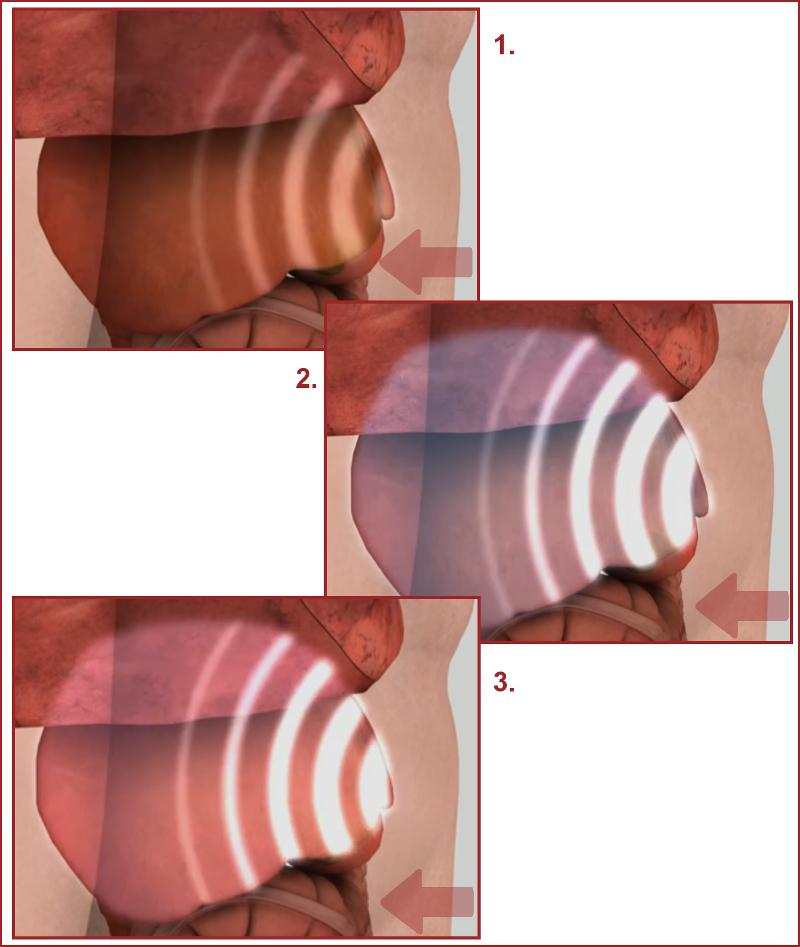 Exame de Elastografia Hepática